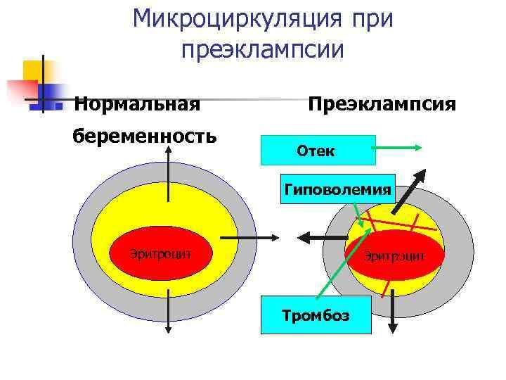 Микроциркуляция при  преэклампсии n  Нормальная  Преэклампсия беременность