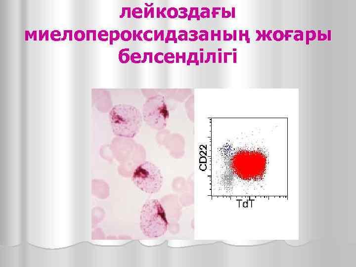 лейкоздағы миелопероксидазаның жоғары   белсенділігі