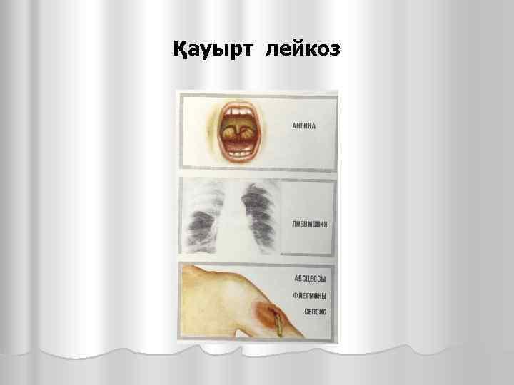 Қауырт лейкоз