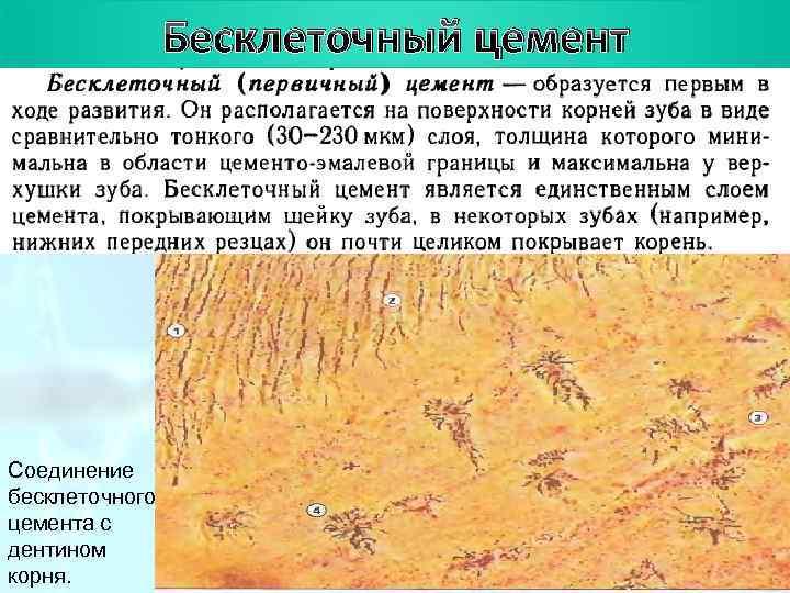 План цемент   Бесклеточный Соединение бесклеточного цемента с дентином