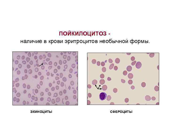 ПОЙКИЛОЦИТОЗ - наличие в крови эритроцитов необычной формы.  эхиноциты
