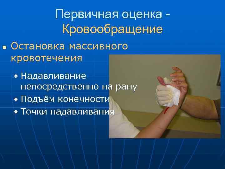 Первичная оценка -   Кровообращение n  Остановка массивного кровотечения •