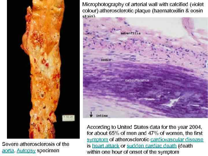 Microphotography of arterial wall with calcified (violet