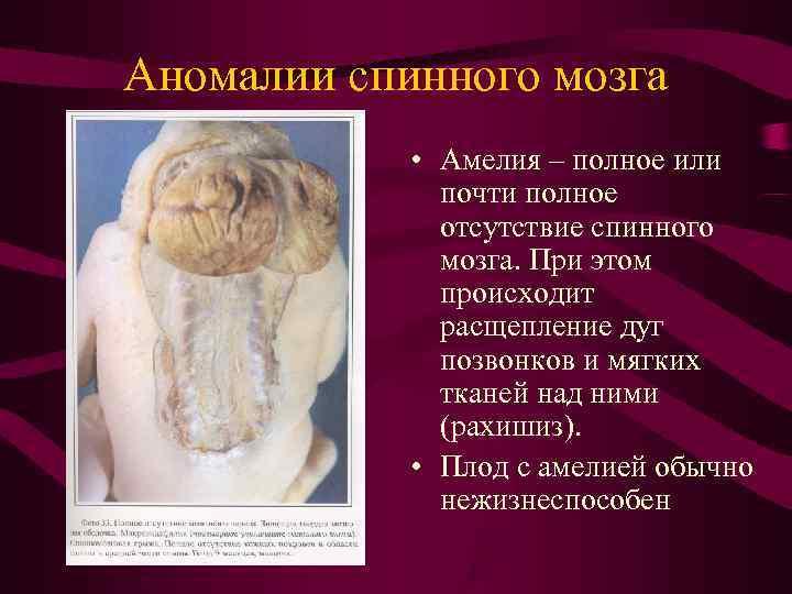Аномалии спинного мозга   • Амелия – полное или    почти