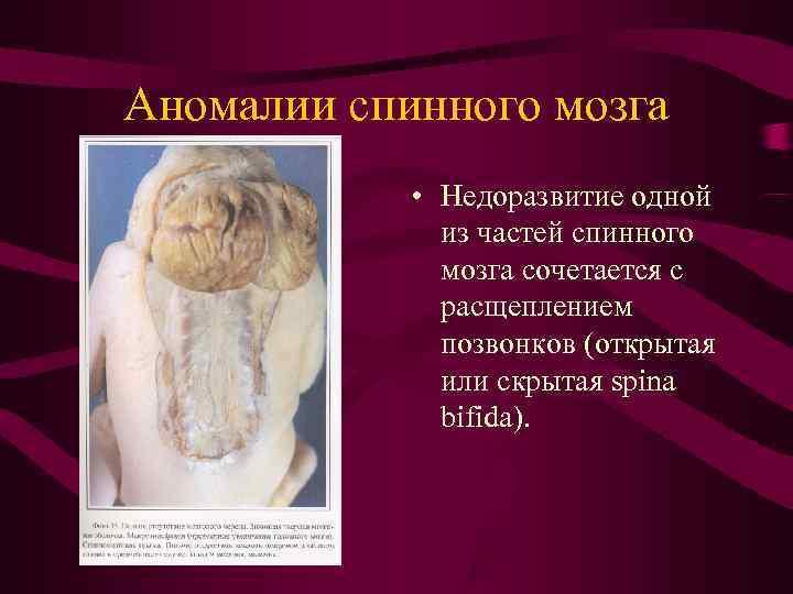 Аномалии спинного мозга   • Недоразвитие одной    из частей спинного