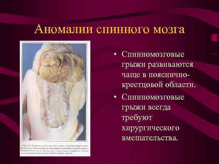 Аномалии спинного мозга   • Спинномозговые    грыжи развиваются