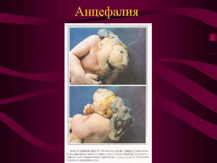 Анцефалия