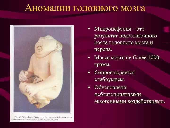Аномалии головного мозга   • Микроцефалия – это    результат недостаточного