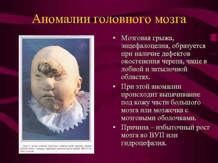 Аномалии головного мозга   • Мозговая грыжа,    энцефалоцелия, образуется