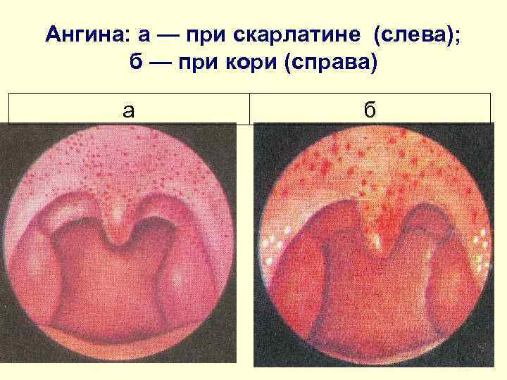 Ангина: а — при скарлатине (слева);   б — при кори (справа)