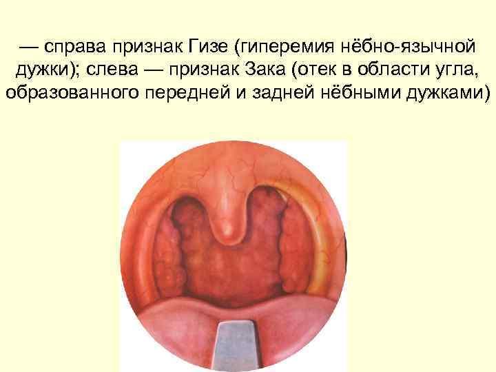 — справа признак Гизе (гиперемия нёбно-язычной дужки); слева — признак Зака (отек в