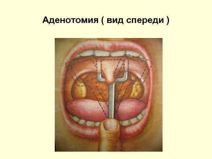 Аденотомия ( вид спереди )