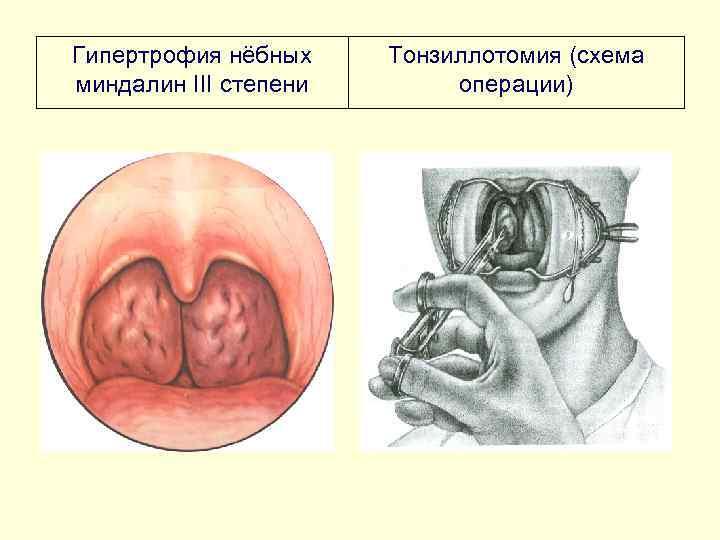 Гипертрофия нёбных Тонзиллотомия (схема миндалин III степени  операции)