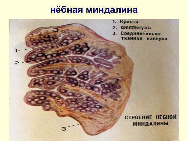 нёбная миндалина