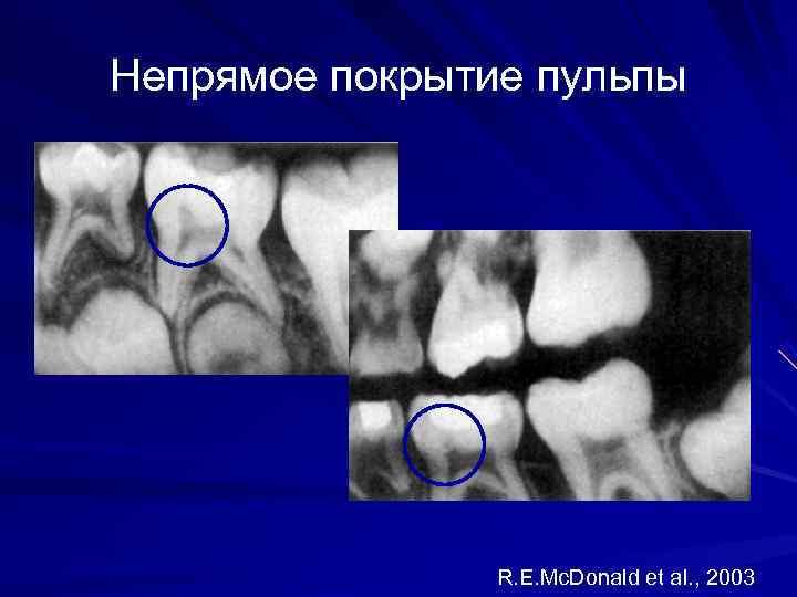 Непрямое покрытие пульпы     R. E. Mc. Donald et al. ,