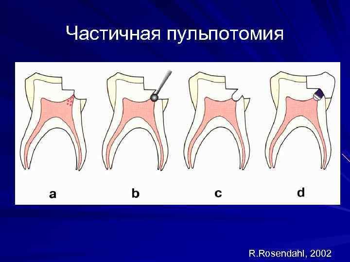 Частичная пульпотомия     R. Rosendahl, 2002