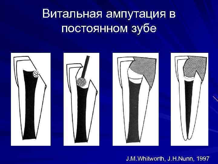 Витальная ампутация в  постоянном зубе   J. M. Whitworth, J. H. Nunn,