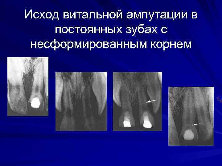Исход витальной ампутации в постоянных зубах с несформированным корнем