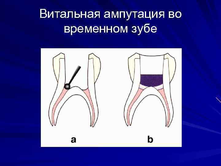 Витальная ампутация во временном зубе