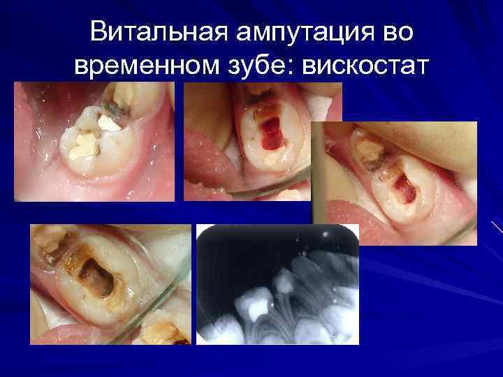 Витальная ампутация во временном зубе: вискостат