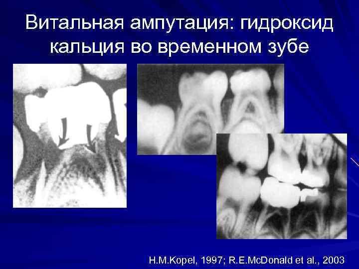 Витальная ампутация: гидроксид  кальция во временном зубе    H. M. Kopel,