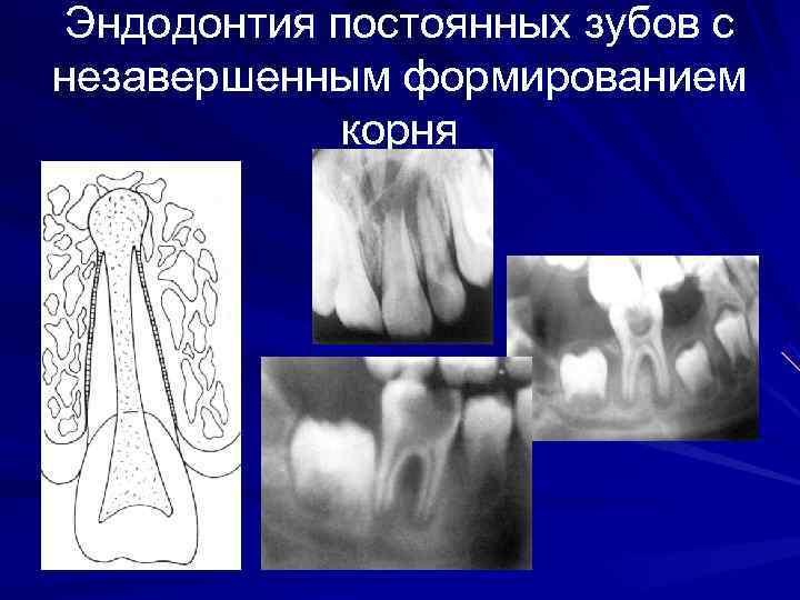 Эндодонтия постоянных зубов с незавершенным формированием   корня