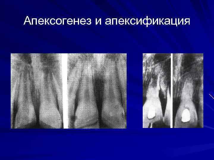 Апексогенез и апексификация