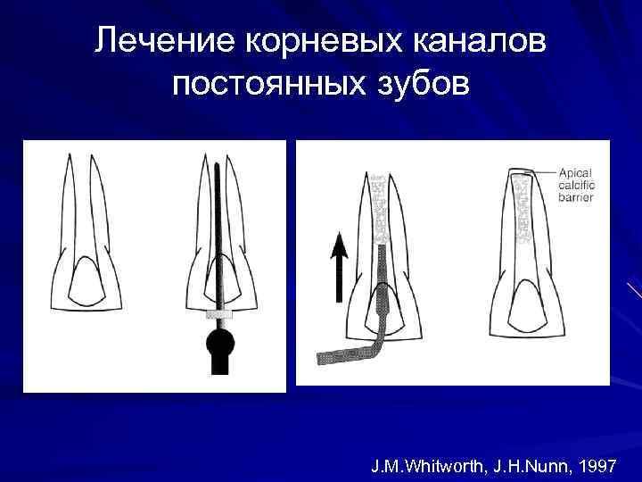 Лечение корневых каналов постоянных зубов    J. M. Whitworth, J. H. Nunn,