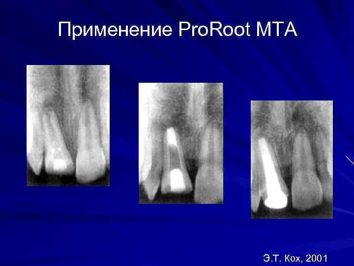 Применение Pro. Root MTA    Э. Т. Кох, 2001