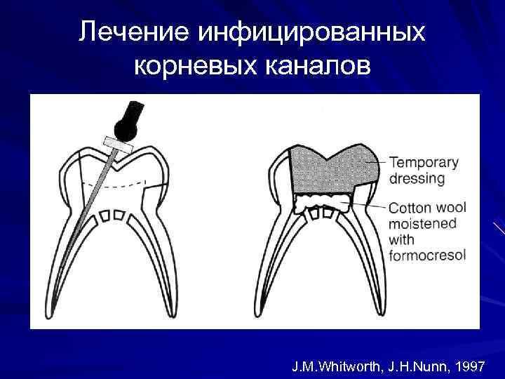 Лечение инфицированных  корневых каналов   J. M. Whitworth, J. H. Nunn, 1997