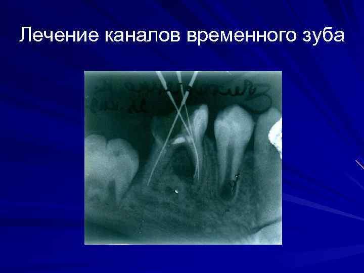 Лечение каналов временного зуба