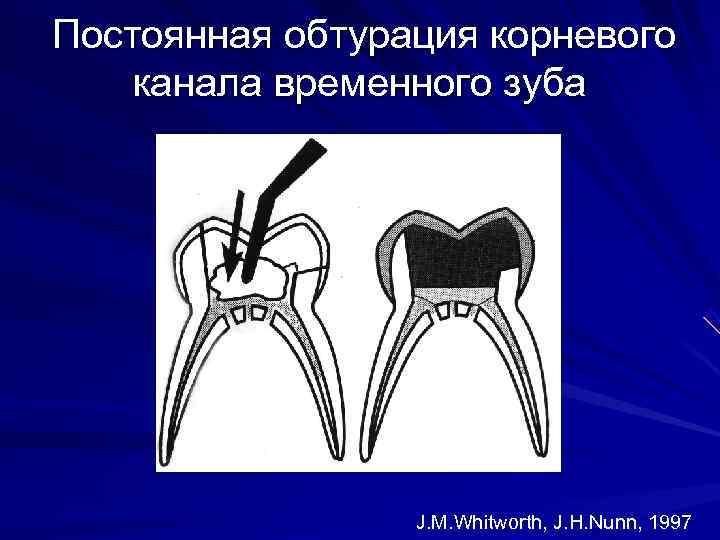 Постоянная обтурация корневого канала временного зуба     J. M. Whitworth, J.