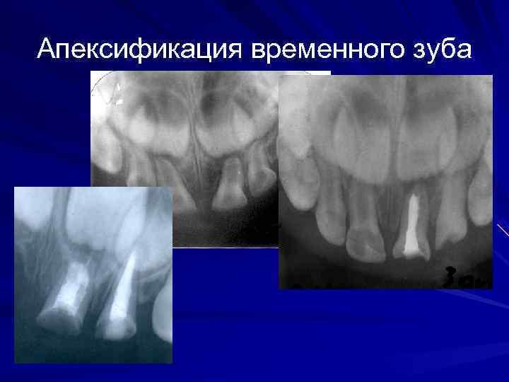 Апексификация временного зуба