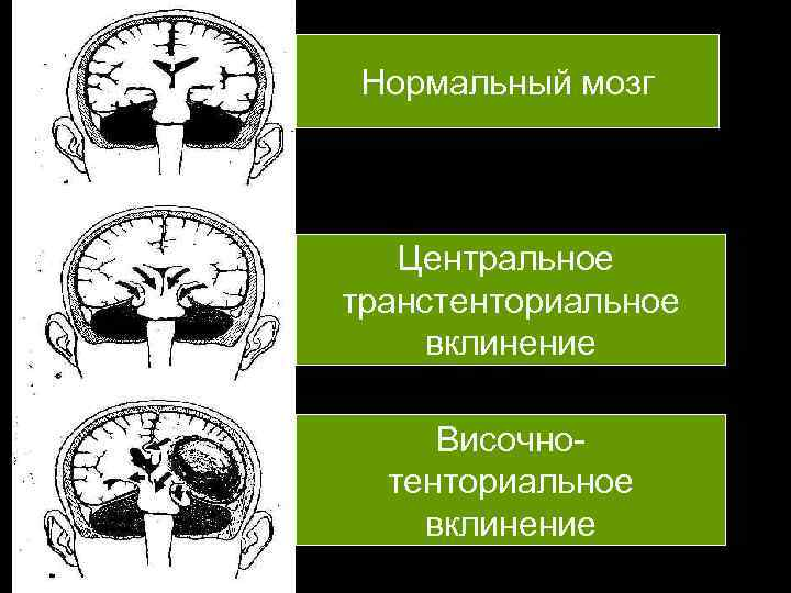 Нормальный мозг  Центральное транстенториальное вклинение  Височно  тенториальное вклинение