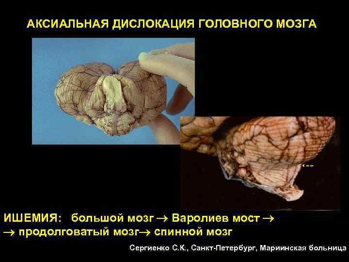 АКСИАЛЬНАЯ ДИСЛОКАЦИЯ ГОЛОВНОГО МОЗГА ИШЕМИЯ: большой мозг  Варолиев мост продолговатый мозг