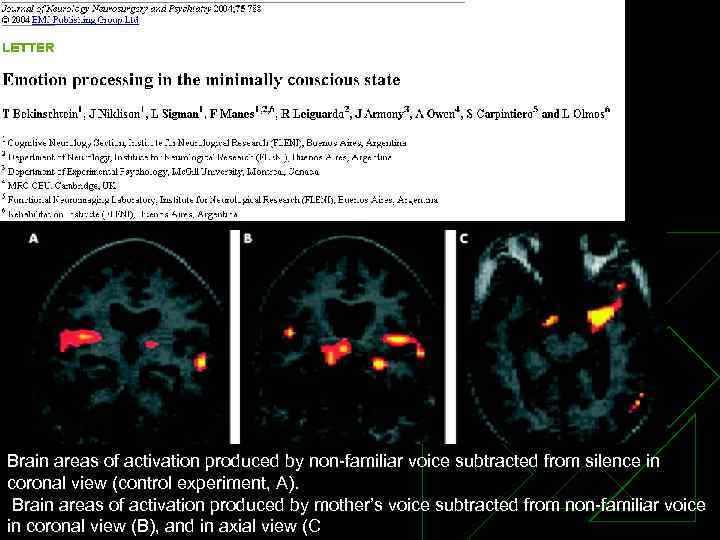 Brain areas of activation produced by non familiar voice subtracted from silence in coronal