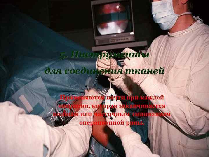 5. Инструменты для соединения тканей Применяются почти при каждой  операции, которая заканчивается