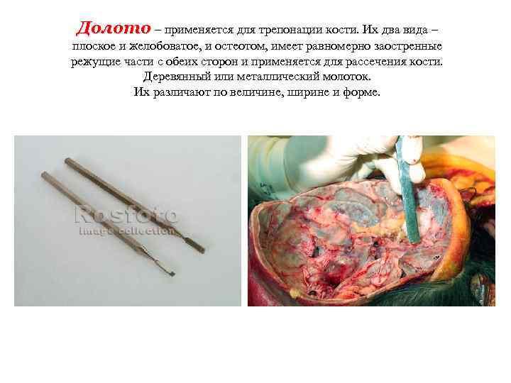 Долото – применяется для трепонации кости. Их два вида – плоское и желобоватое,
