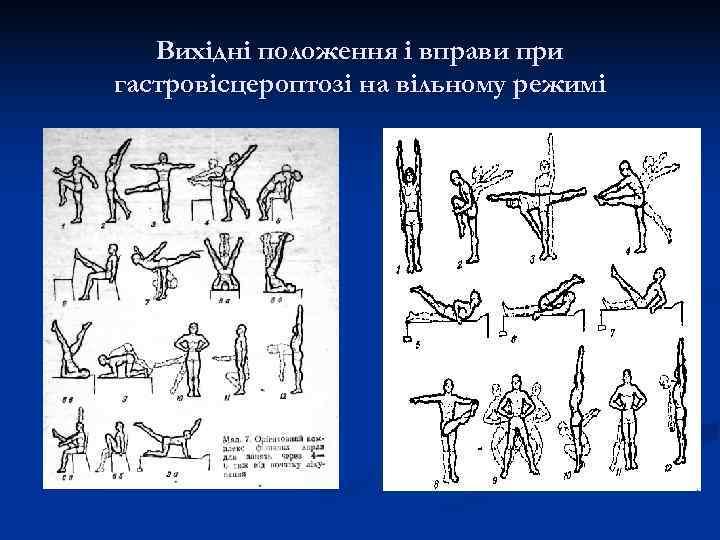 Вихідні положення і вправи при гастровісцероптозі на вільному режимі