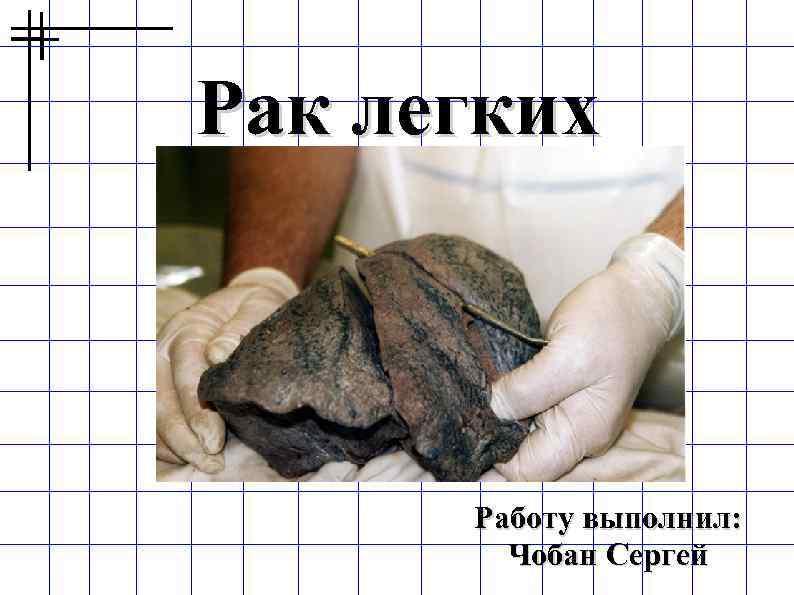 Рак легких   Работу выполнил:   Чобан Сергей