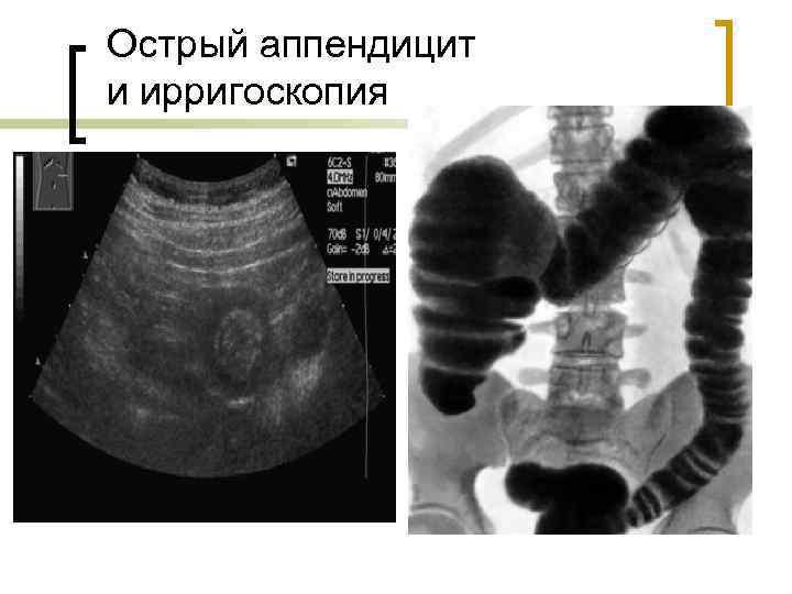 Острый аппендицит и ирригоскопия