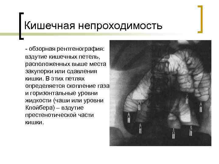 Кишечная непроходимость - обзорная рентгенография:  вздутие кишечных петель,  расположенных выше места закупорки