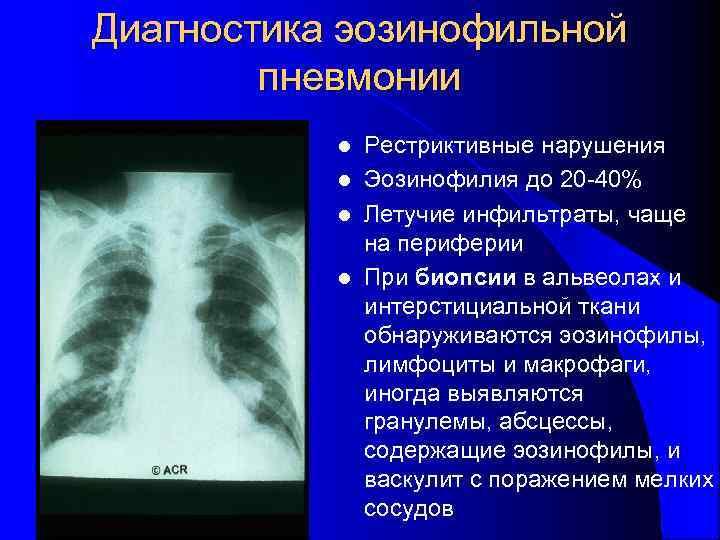 Диагностика эозинофильной   пневмонии  l Рестриктивные нарушения  l Эозинофилия до 20
