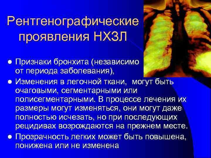 Рентгенографические проявления НХЗЛ l Признаки бронхита (независимо  от периода заболевания), l Изменения в