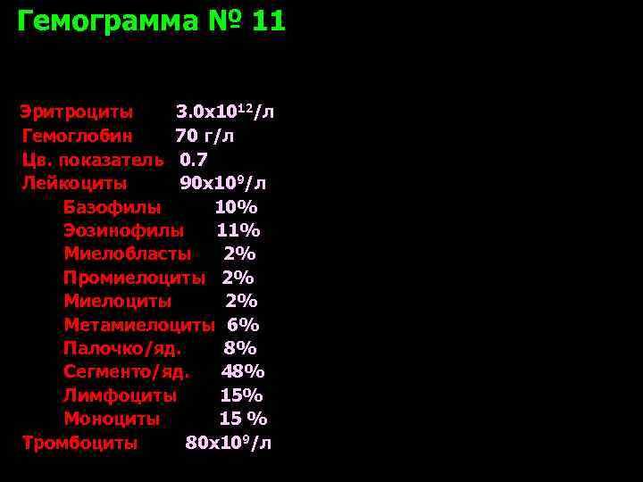 Гемограмма № 11  Эритроциты 3. 0 х1012/л Гемоглобин 70 г/л Цв. показатель 0.