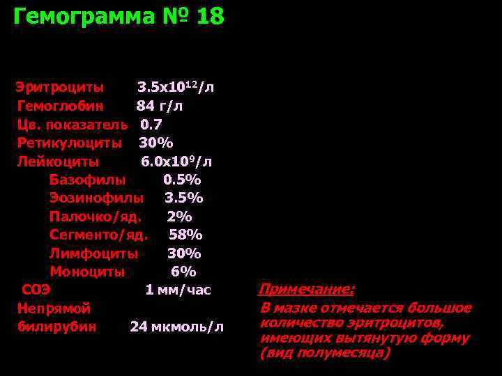Гемограмма № 18  Эритроциты 3. 5 х1012/л Гемоглобин 84 г/л Цв. показатель 0.