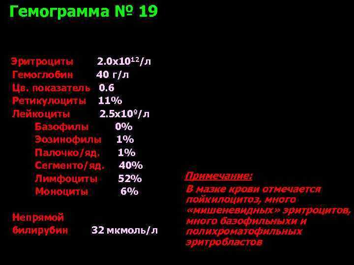 Гемограмма № 19  Эритроциты 2. 0 х1012/л Гемоглобин 40 г/л Цв. показатель 0.