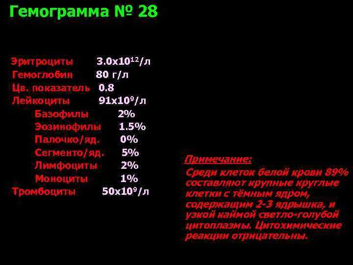 Гемограмма № 28  Эритроциты 3. 0 х1012/л Гемоглобин 80 г/л Цв. показатель 0.