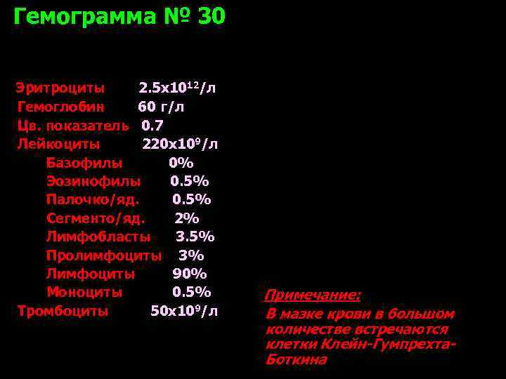Гемограмма № 30  Эритроциты 2. 5 х1012/л Гемоглобин 60 г/л Цв. показатель 0.