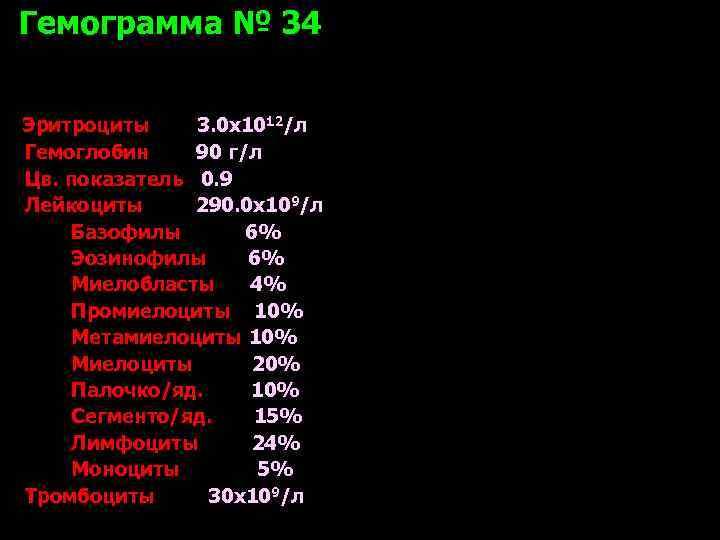 Гемограмма № 34  Эритроциты 3. 0 х1012/л Гемоглобин 90 г/л Цв. показатель 0.